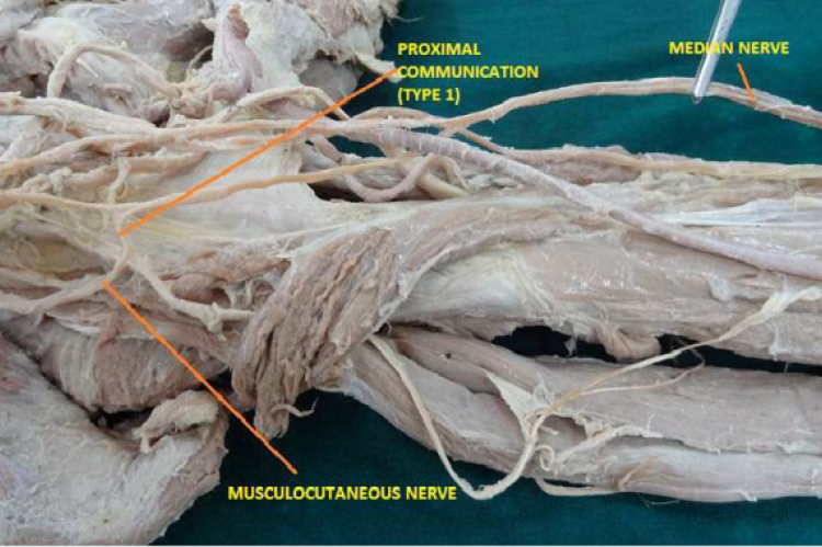 communication between median and musculocutaneous nerves