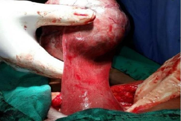 Mesentric mass with attached pedicle