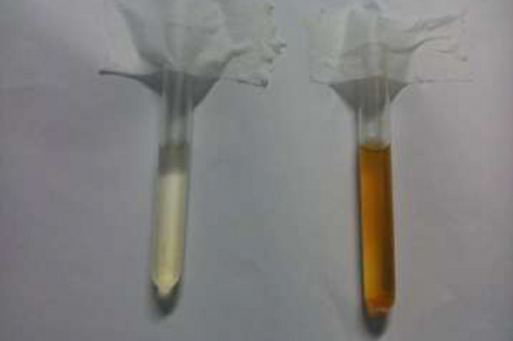 shows brownish urine (Right) in patient with myoglobinuria, compared with normal urine
