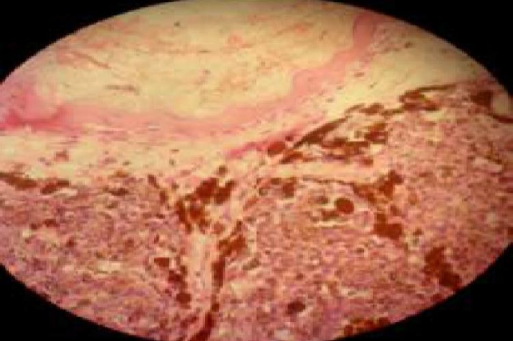Histological examination of lesional mucosal biopsy showing intracytoplasmic melanin pigment, nuclear atypia and mitoses infiltrating through the entire thickness of biopsy confirmed the diagnosis of malignant melanoma.