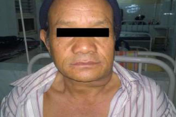 Photograph of patient showing swelling in left submandibular region