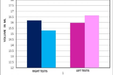 Comparison of both testicular volumes in control and sub clinical varicocele group