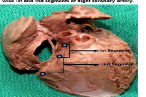 Morphological and morphometric parameters of coronary arteries in human foetal hearts