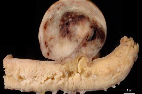 Cross section of GIST in the small intestine showing hemorrhages