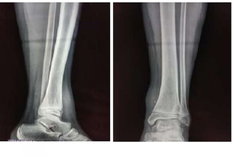 A well-defined soft tissue swelling along the medial aspect of the distal diaphysis of the left tibia with a linear well-defined radio-opacity within.