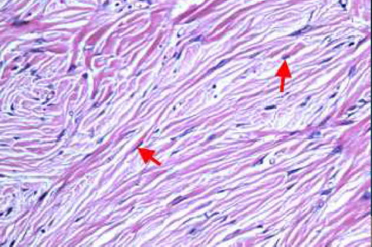 Spindle cells in between collagen fibres (40x)
