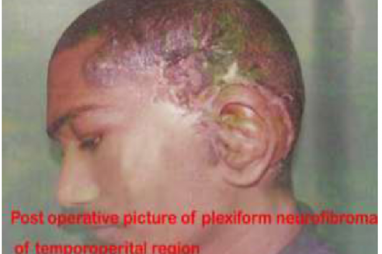 Plexiform neurofibroma of the scalp a rare entity – a case report and review