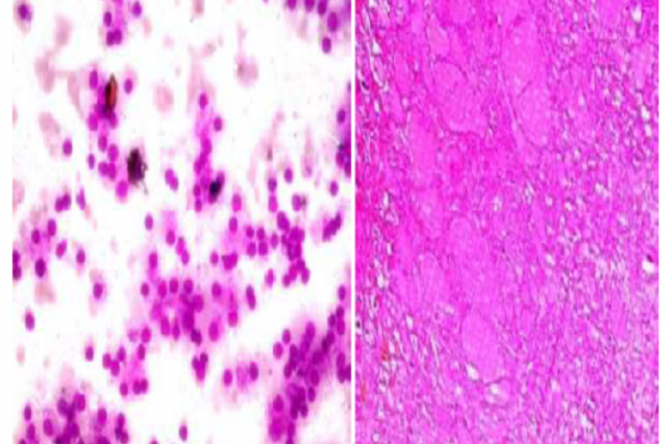 Thin colloid background seen dispersed both involution and hyperplasic follicular epithelial cells. HP reveals thyroid follicles of varying sizes distended with colloid.