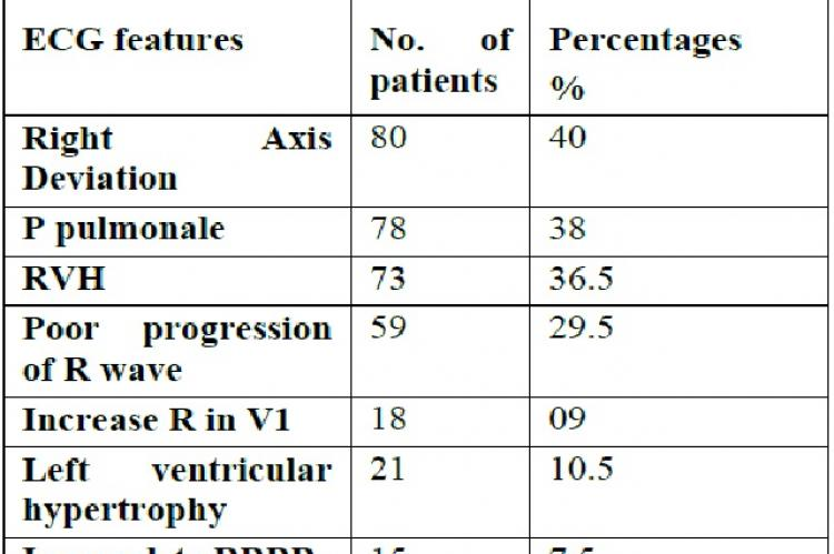Analysis of ECG among COPD Patients: