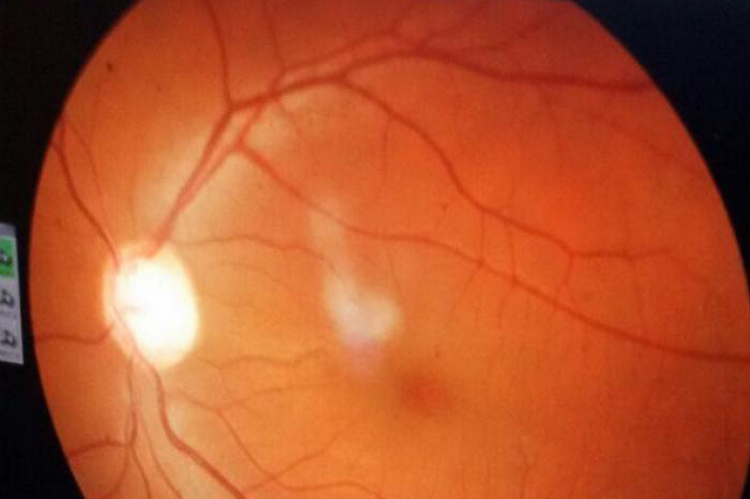 Fundus photograph of left eye showing inferior notching and temporal pallor