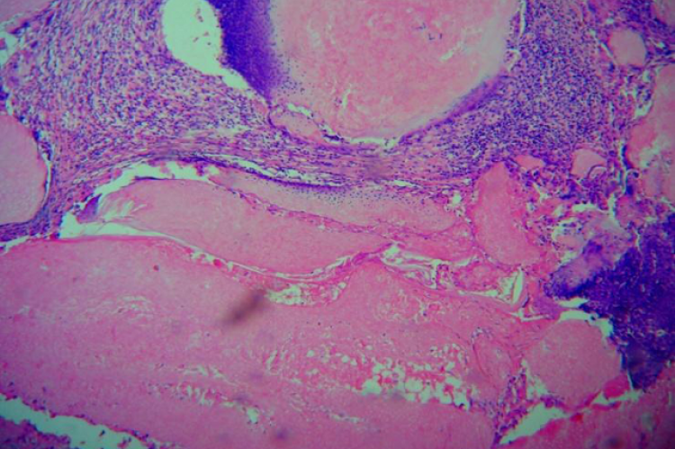showing histological picture of pilomatricoma (H &E, 40X)