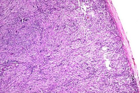 Totally effaced lymphnode (H and E,scanner)