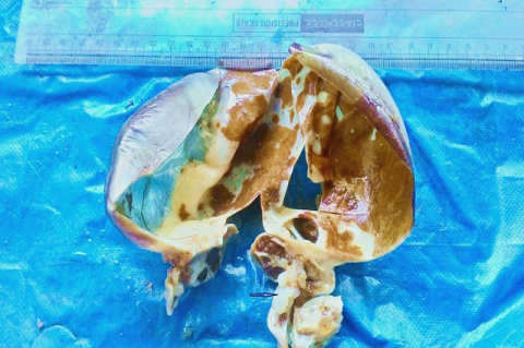 showing gross picture of ovary with hydatidiform mole (see arrow).