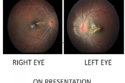 Fundoscopy on initial admission showing bilateral papilledema with macular star and arteriolar attenuation - left eye more than right eye.